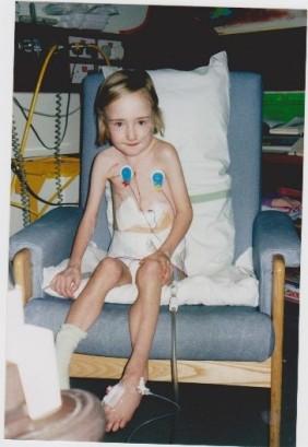 2002 Post Transplant Scar